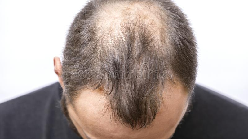 the truth about balding health and fitness